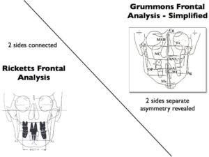 Ricketts Grummons frontals